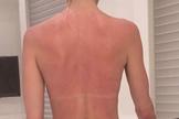 Luciana Gimenez no mostra costas queimadas pelo sol. (Foto: Reprodução/Instagram/lucianagimenez)