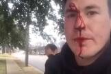 Ryan Roberts ensanguentado após sofrer agressões por causa de seu ativismo pró-vida. (Foto: Reprodução/YouTube).