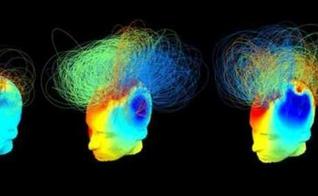 Testes mostraram que certos pacientes têm atividade cérebral semelhante à de pessoas saudáveis.