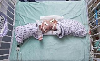 Gêmeas Erin e Abby Delaney no Hospital Infantil da Filadélfia, em setembro de 2016. (Foto: AP)