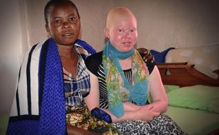 Flora e sua filha Grace, que nasceu com albinismo. (Foto: Reprodução/Faithit)