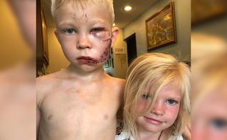 Bridger Walker (esquerda) defendeu sua irmã e evitou que ela fosse atacada por um cachorro. (Foto: Instagram)