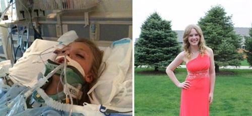 Taylor Hale internada na UTI e hoje, com 17 anos, antes de seu baile de formatura. (Foto: Reprodução/Stacy Henningsen).