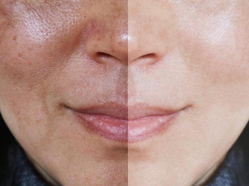 A tecnologia promete deixar a pele homogênea de forma mais efetiva. (Foto: Getty Images)