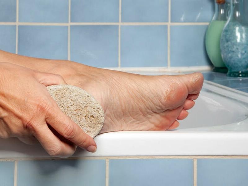O hábito de lixar demais os pés é extremamente prejudicial, segundo especialistas. (Foto: Reprodução/Pinterest)