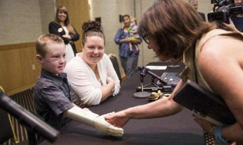 Alex Pring e sua prótese de braço feita por impressora 3D