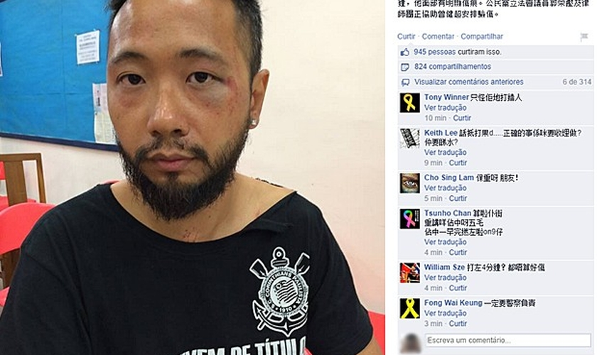 Postagem da página do Partido Cívico no Facebook mostra Tsang ferido após agressão de policiais em Hong Kong