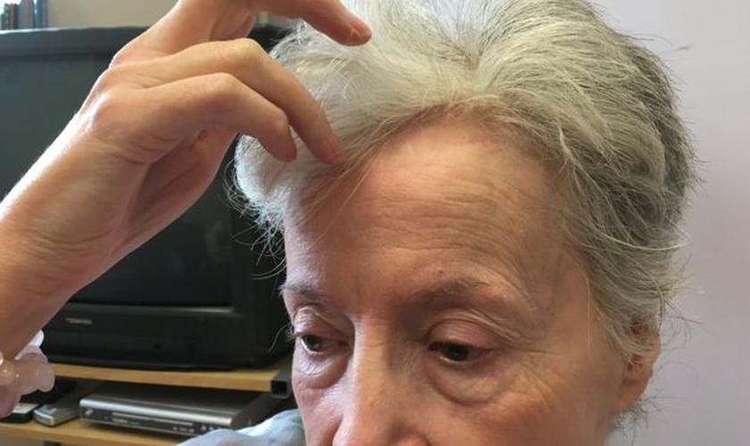 Após levar facadas na cabeça durante um assalto, Angela Burks causou impacto ao declarar que está preparada para perdoar o criminoso. (Foto: Reprodução/BBC)