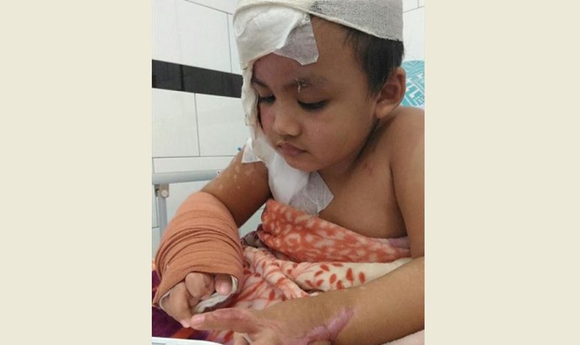 Sua mãe diz que pelo menos ele parou de chorar depois de cada cirurgia. (Foto: Reprodução).