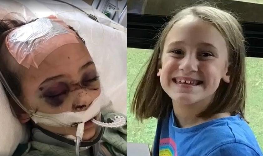 Chloe Clark foi diagnosticada com meningite bacteriana. (Imagem: Facebook)