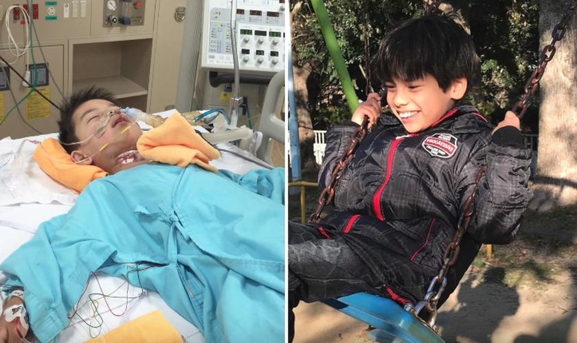 Arão enfrentou diversas cirurgias após seu nascimento. Hoje, aos 9 anos, ele é marcado por milagres. (Foto: Arquivo pessoal)