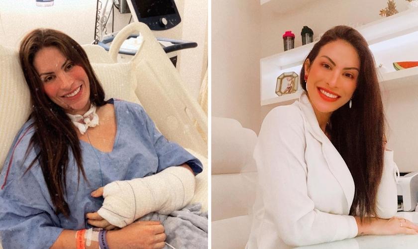 A médica Dieynne Saugo sai da UTI após ser picada por jararaca. (Foto: Reprodução / Instagram)
