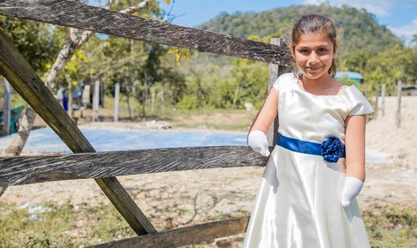 Cleidy é exemplo de superação em sua comunidade, por ser uma jovem escritora premiada, mesmo tendo nascido sem as duas mãos. (Foto: Compassion)