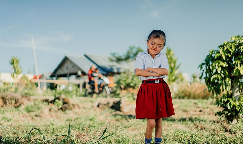 Karunia nasceu com Síndrome de Apert, mas não deixou de se sentir confiante. (Foto: Compassion International)