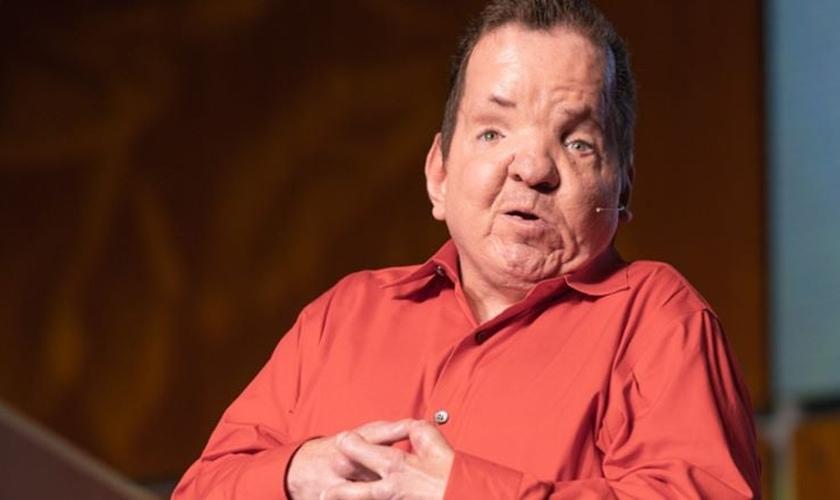 Dorsey nasceu com síndrome de Apert, mas superou a deficiência e se tornou um evangelista. (Foto: Dorsey Ross Ministries)