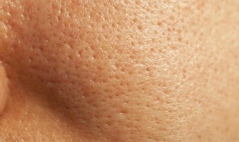 Receita para fechar poros dilatados