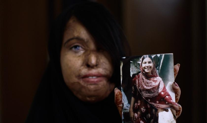 Naila Farhat, de 22 anos, é uma paquistanesa sobrevivente a um ataque com ácido. A jovem segura uma foto que mostra seu rosto antes do ataque. (Foto: AP)