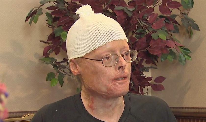 Jimmy Carter teve que passar por cerca de 20 cirurgias de reconstituição. (Foto: Facebook)