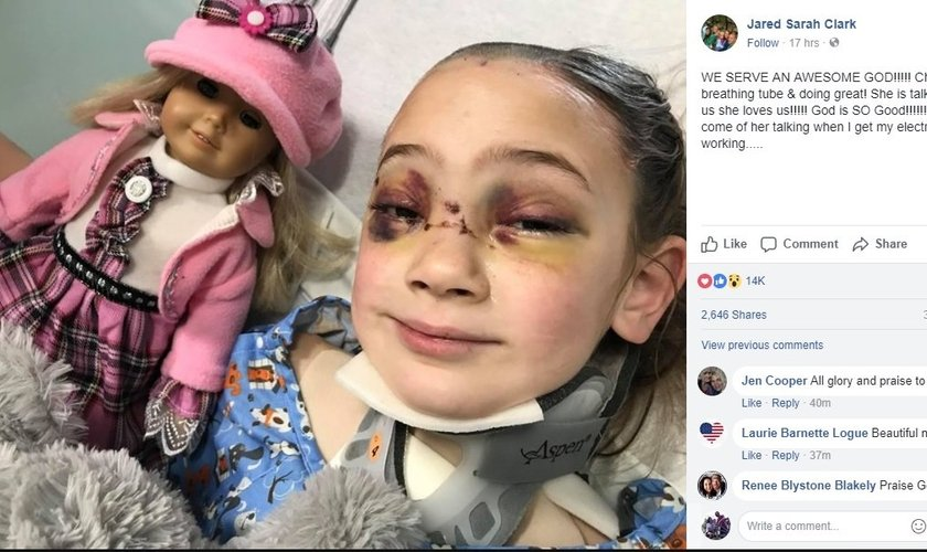 Uma foto da garota já acordada foi publicada pelo pai no hospital. (Foto: Facebook)