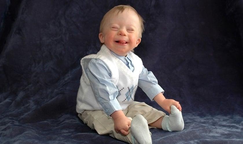 A experiência de ter um filho com síndrome de Down mudou a visão de um teólogo. (Foto: JS Cook/Getty Images)