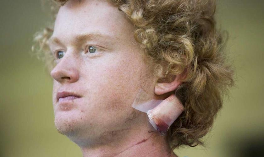 Rome Shubert teve a cabeça atingida. (Foto: Marie D. De Jesus, Houston Chronicle / Houston Chronicle).