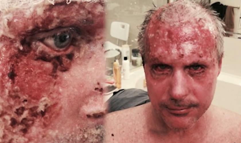 Chris ficou com mais de 20% de seu corpo com queimaduras. (Foto: Reprodução).