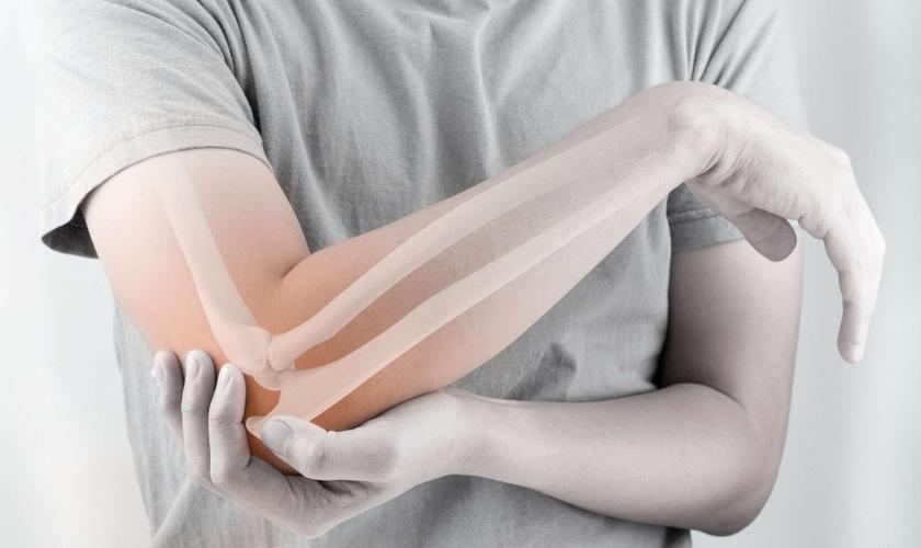 A osteoporose é um problema real e que afeta milhões de pessoas a nível mundial. (Foto: iStock)