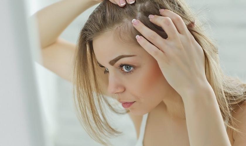 Mais de 50% das mulheres têm alguma queixa relacionada à queda de cabelos. (Foto: Shutterstock)
