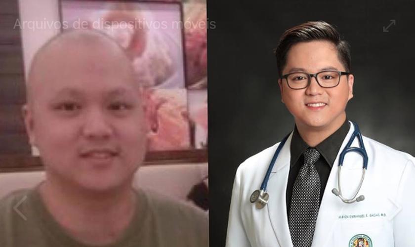 O filipino Albien Emmanuel Gacias venceu um câncer de pulmão e se formou em medicina. (Foto: Reprodução)