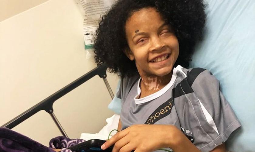 Phoenix Richey superou uma síndrome rara que afetou 65% de sua pele. (Foto: Facebook/Pray For Phoenix)