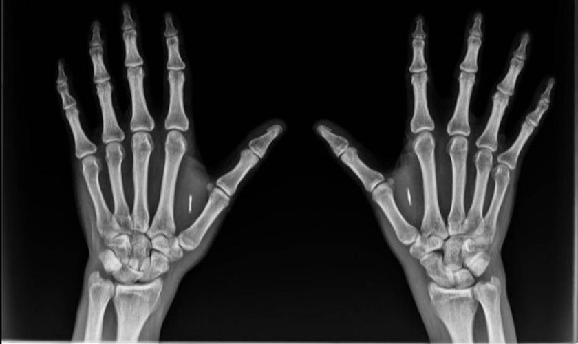 Implante de chip nas mãos seria uma solução possível para o combate ao coronavírus, segundo pesquisador. (Foto: Divulgação)