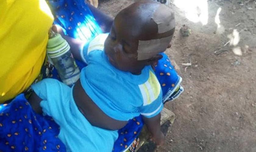Criança nigeriana foi ferida em ataque Fulani que tirou a vida de seu pai. (Foto: Barnabas Fund)