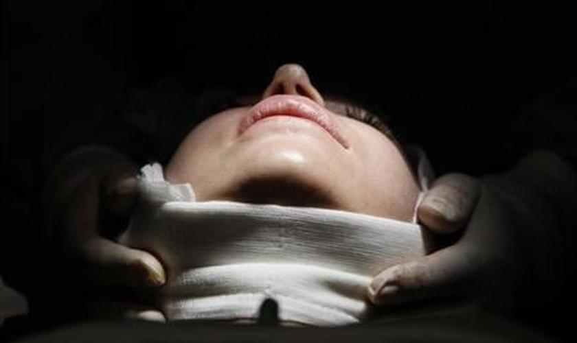 Mulher durante cirurgia plástica em uma clínica de Budapeste, Hungria, em março de 2012.