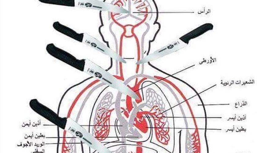 Imagem mostra os pontos principais do corpo a serem atingidos por uma faca, causando rápida fatalidade. (Foto: Times of Israel)