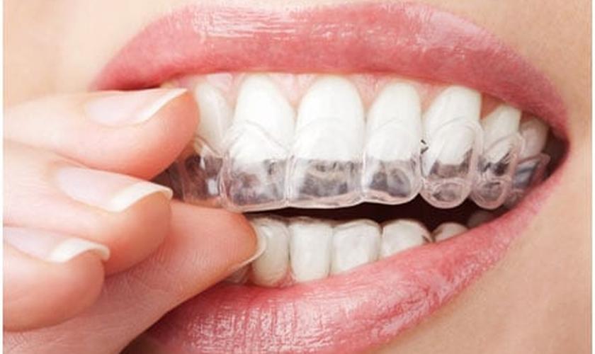 """a técnica ortodôntica do """"aparelho invisível"""" tem sido uma das principais alternativas para o alinhamento dos dentes sem atrapalhar a estética. (Foto: Reprodução/ Unidonto)"""