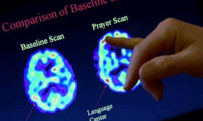 Análise entre o cérebro no estado normal e o cérebro durante oração. (Foto: Reprodução/ Centre Chiro)