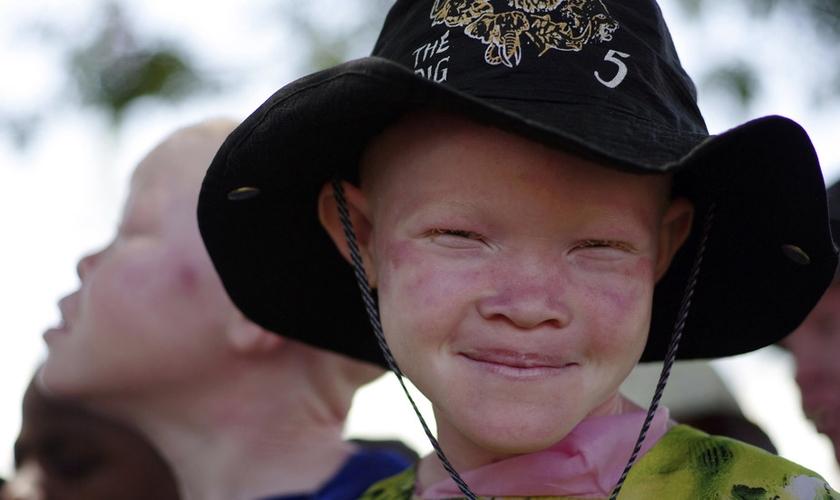 O albinismo ainda é visto com preconceito e superstições em diversos países da África. (Foto: Reuters)