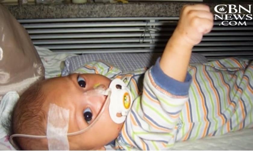 Um tumor na boca, impedia que o bebê se alimentasse normalmente. (Imagem: CBN News)