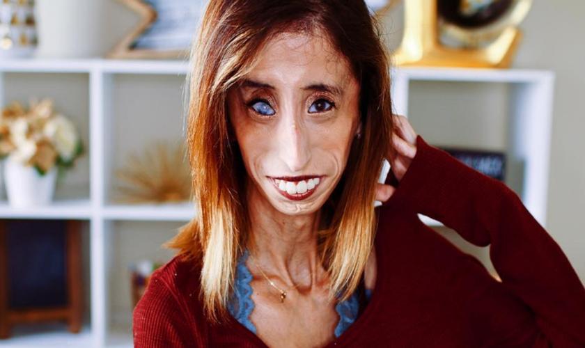 Lizzie Velasquez inspira milhões de pessoas com sua história de superação. (Foto: Reprodução/Instagram)