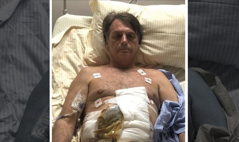 O candidato Jair Bolsonaro foi submetido a uma cirurgia de emergência no intestino. (Foto: Reprodução)