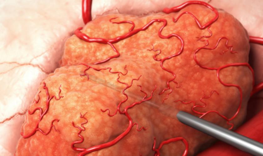 Imagem ilustrativa de órgão em tratamento. (Foto: Divulgação/Alfa Tau)