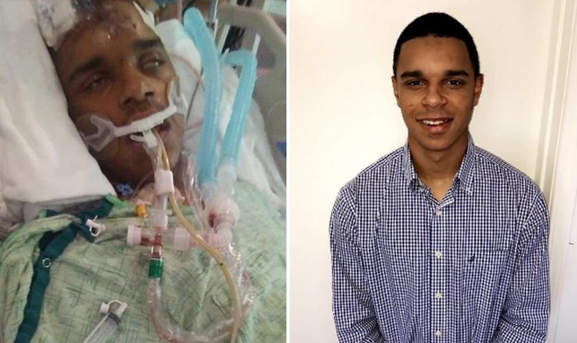 Luke Pickering durante seu coma, e hoje, milagrosamente reabilitado. (Foto: Reprodução/Augusta Chronicle)