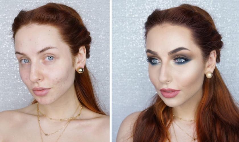 Existem truques de maquiagem que podem amenizar as acnes. (Foto: With Love Nadia)