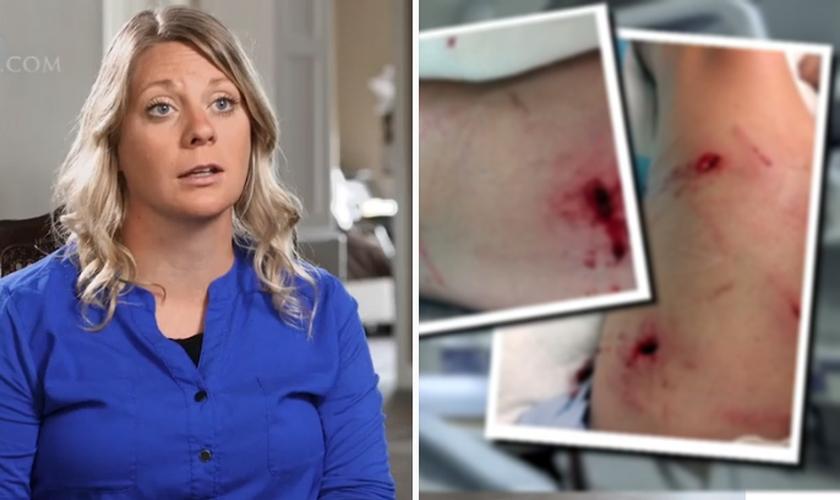 Casadi Schroeder foi atacada por um urso durante um acampamento bíblico no Canadá. (Foto: CBN News)
