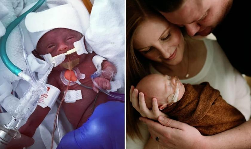 """James """"Finn"""" Hill na UTI Neonatal (à esquerda) e com seus pais Chris e Jessica após alta hospitalar. (Foto: Reprodução/Facebook)"""