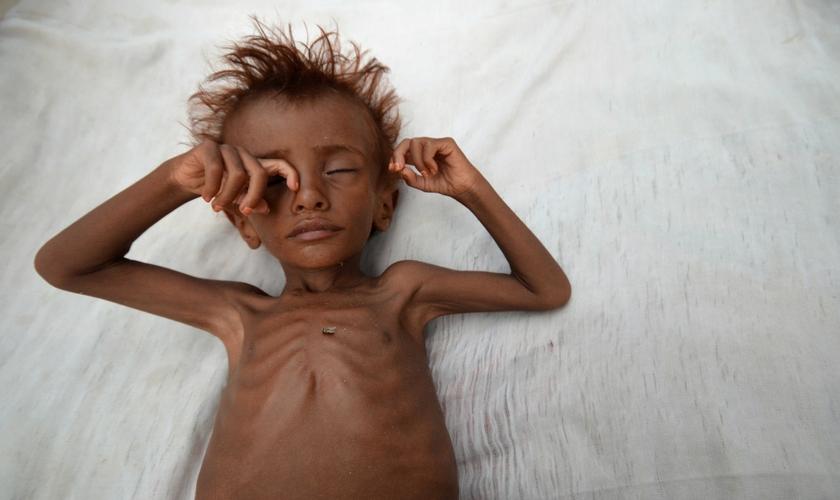 Menino desnutrido deitado em uma cama no distrito de al-Tuhaita, no Iêmen. (Foto: Abduljabbar Zeyad/Reuters)