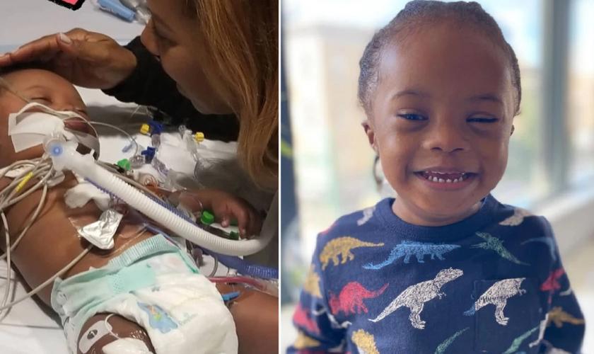 Noah nasceu com síndrome de Down, problemas cardíacos, pulmonares e renais. (Foto: Yami Johnson/Metro)