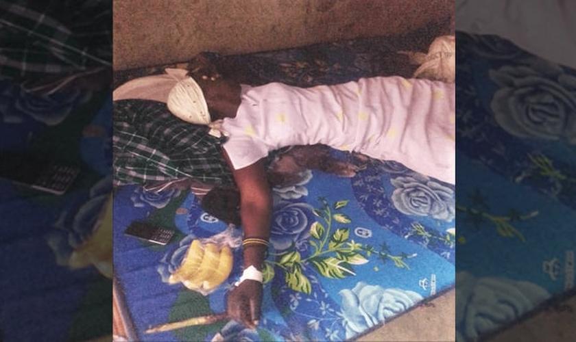 Zubeda Nabirye após tratamento por agressão na aldeia Matovu, no leste de Uganda. (Foto: Morning Star News)