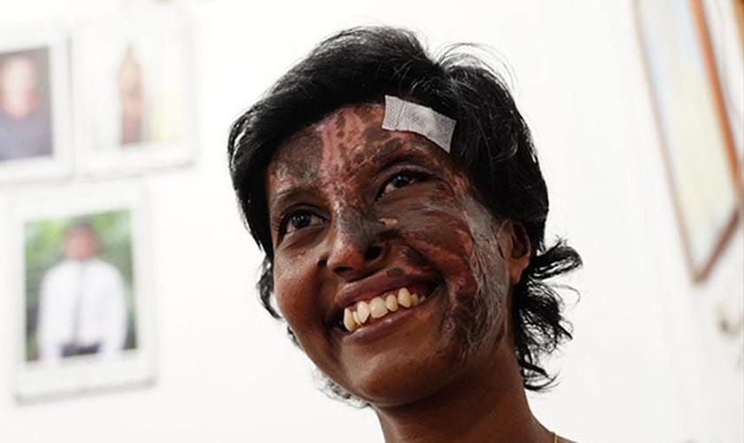 A cristã Rebekah com marcas da explosão feita por terroristas em uma igreja no Domingo de Páscoa. (Foto: Reprodução / UGCN)