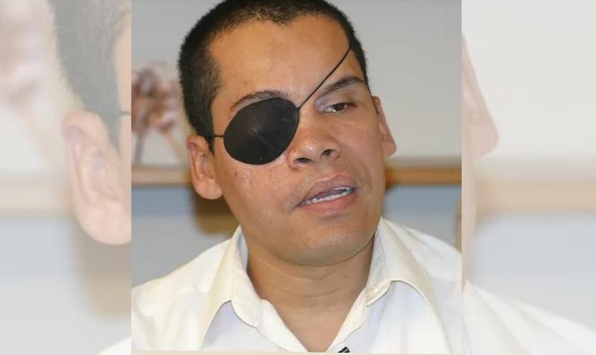 Alex usa um tapa-olho após perder a visão. (Foto: Reprodução / VOM)